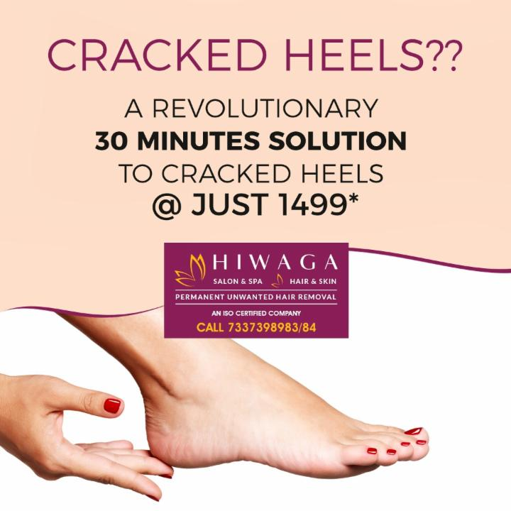 30 Mins. solution to cracked heels @ Just 1499*